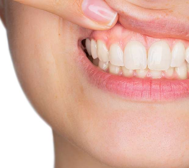 Los Alamitos Gum Disease